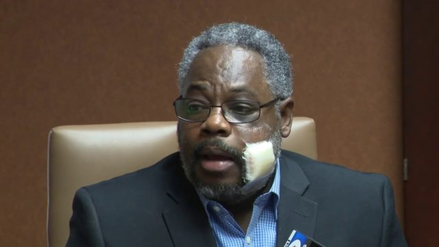 Bahamian attacked in the US to take legal action